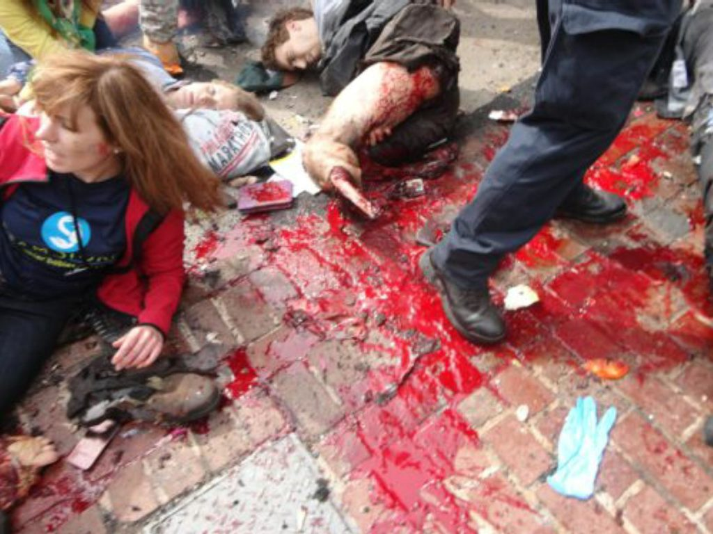 False flag theater: Boston bombing involves clearly staged carnage